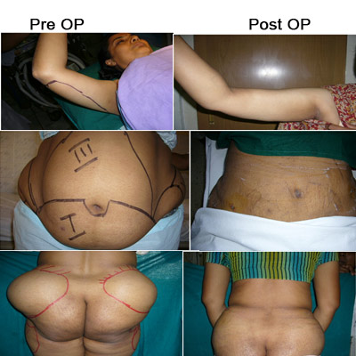 Liposuction Surgery Cost In Chennai Liposuction Hospitals In
